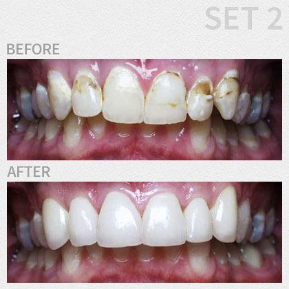 Gallery | Boynton Dental Studio | Dentists Boynton Beach FL