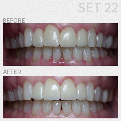 Gallery | Boynton Dental Studio | Dentists Boynton Beach FL