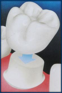 Crowns | Boynton Beach Dental Studio | Cosmetic Dentistry Boynton Beach FL