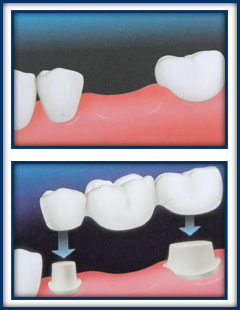 Crowns | Boynton Beach Dental Studio | Cosmetic Dentistry Boynton Beach FL