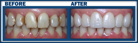 Crowns | Boynton Beach Dental | Endodontics Boynton Beach FL
