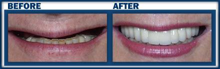 Boynton Dental Studio | Dental Implants Boynton Beach FL