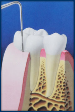 During a dental checkup, the depth of the pockets between tooth and gum are measured.