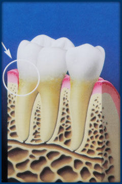 As pockets deepen, it becomes impossible to clean out plaque through brushing or flossing. Here, the buildup of plaque starts to damage gum tissue.