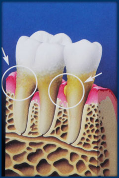 Unusually deep pockets create an environment where gum disease progresses.