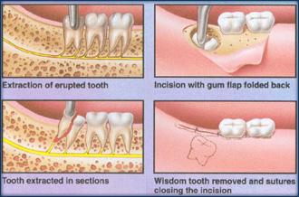 Boynton Beach Dental | Oral Surgery Boynton Beach FL