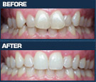 Dental Transformations - Gallery
