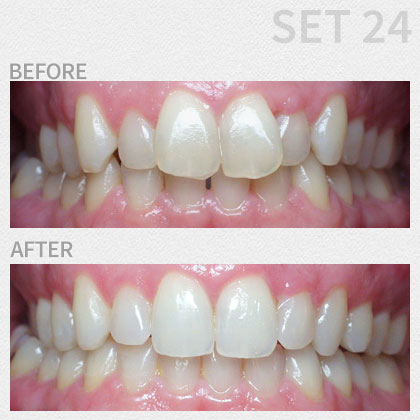 Dr. Salee | Boynton Dentist